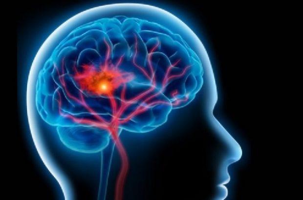 سالانه ۲هزار تن در قم دچار سکته مغزی می شوند/ سن سکته مغزی در ایران ده سال زودتر از میانگین جهانی