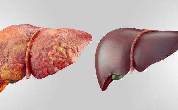 چهار عامل مهم بهبود بیماری کبد چرب