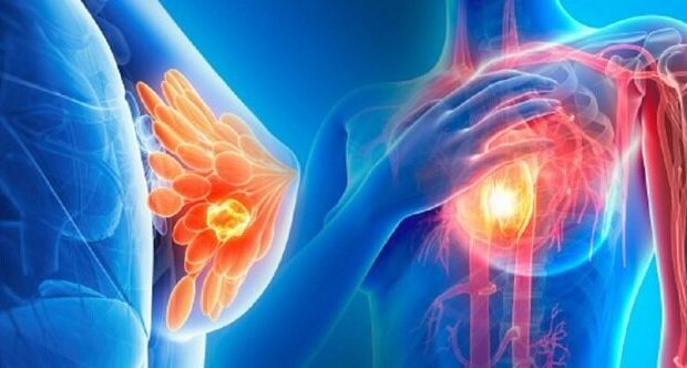 سرطان پستان شایعترین سرطان بانوان قمی